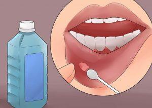 Bài thuốc trị nhiệt miệng rất hiệu quả bằng Y học cổ truyền