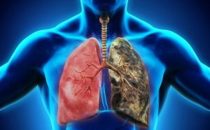 YHCT giới thiệu bài thuốc và món ăn điều trị lao phổi rất hiệu quả