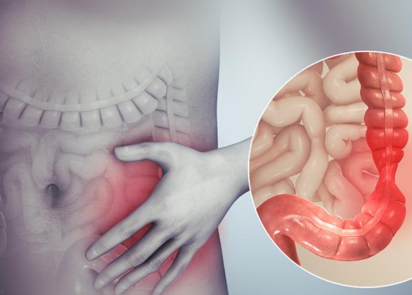 Hội chứng ruột kích thích là một hội chứng (IBS)
