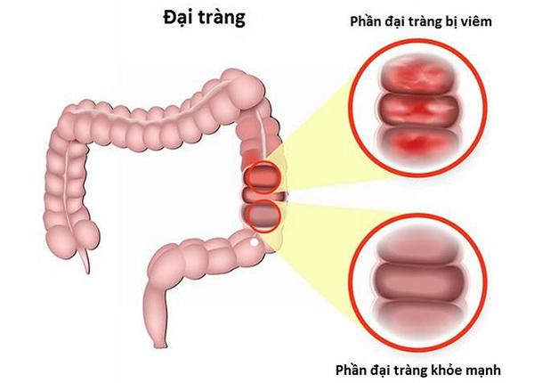 Một số bài thuốc nam chữa bệnh viêm đại tràng rất an toàn