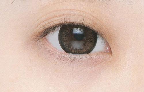 Mắt 3 mí là một dạng khiếm khuyết