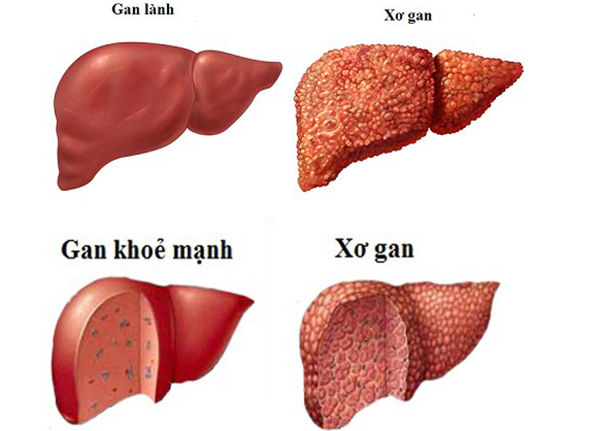Sử dụng các bài thuốc nam điều trị bệnh xơ gan hiệu quả