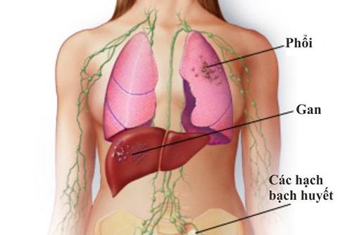 Thuốc nam có tác dụng trong điều trị bệnh ung thư di căn không?
