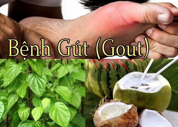 Y sĩ Y học cổ truyền mách nhỏ một bài thuốc trị bệnh gout