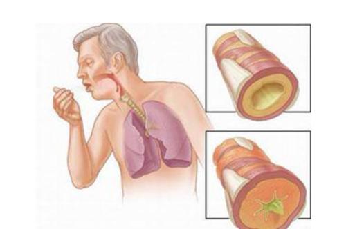 Chữa bệnh giãn phế quản bằng những bài thuốc nam hiệu quả