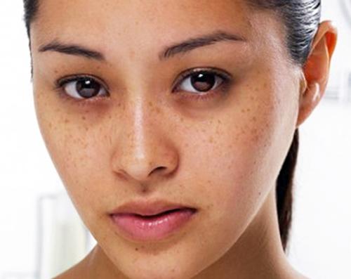 Điều trị nám da với các bài thuốc nam hữu hiệu nhất