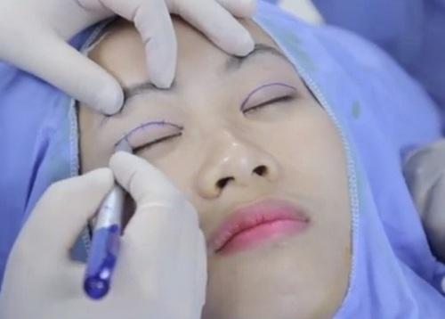 Mắt 3 mí phải khắc phục nhờ bấm mí Hàn Quốc