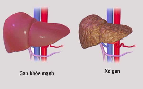 Bỏ túi bài thuốc chữa bệnh xơ gan từ dược liệu thiên nhiên