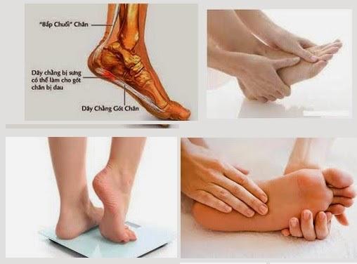Bài thuốc đơn giản chữa đau gót chân hiệu quả
