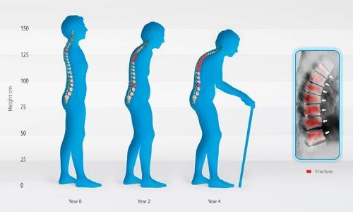 Bệnh loãng xương ảnh hưởng xấu đến cuộc sống người bệnh