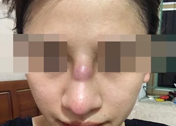 Mũi của bệnh nhân bị nhiễm trùng sau khi phẫu thuật thẩm mỹ. Ảnh: BVCC.