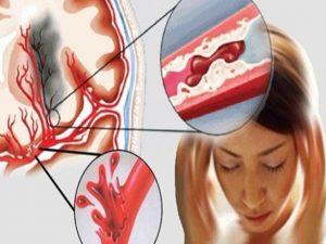 Các phương pháp điều trị bệnh thiếu máu trong YHCT như thế nào?