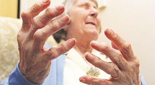 Viêm đa khớp gây ra những cơn đau nhức, sưng và cứng khiến cơ thể khó trong cử động