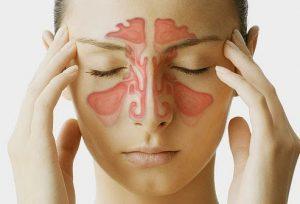 Bài thuốc điệu trị viêm xoang mạn tính hiệu quả trong YHCT